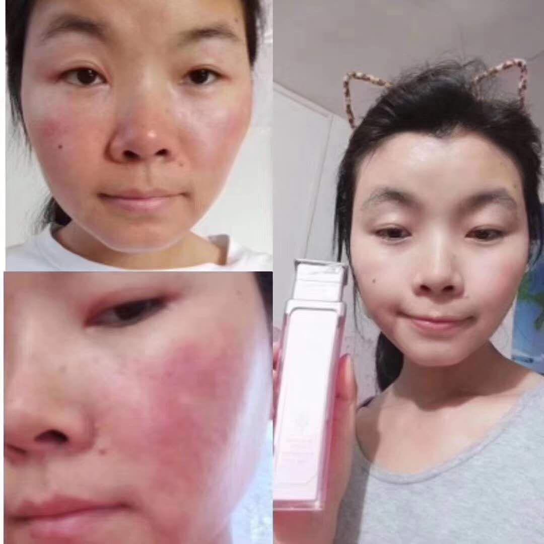 ﹌公主家洗面奶﹌招微商代理?敏感肌肤修复