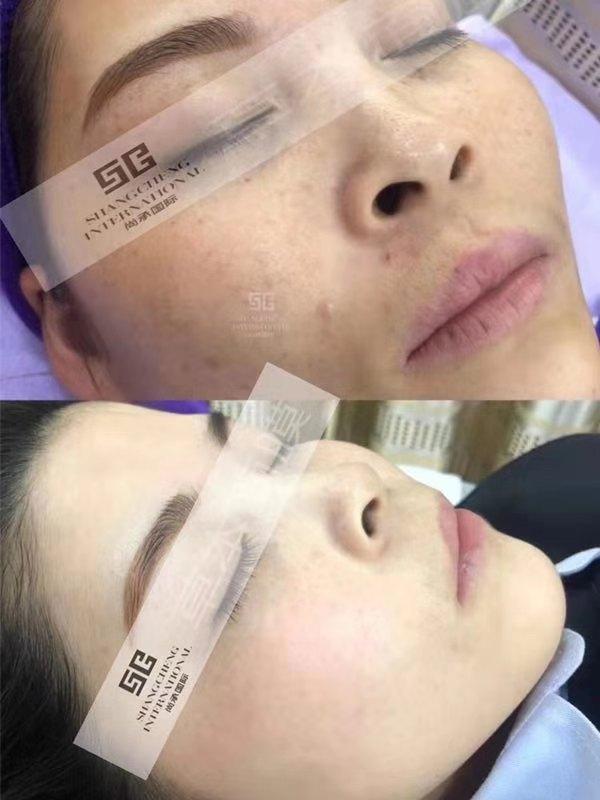 尚承国际·中药面膜全面解决皮肤问题?可以清热解毒的吗?