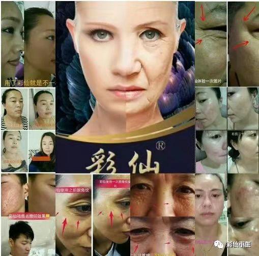 彩仙神奇微整原液12年的精心研发使用了肌肤会自愈吗?