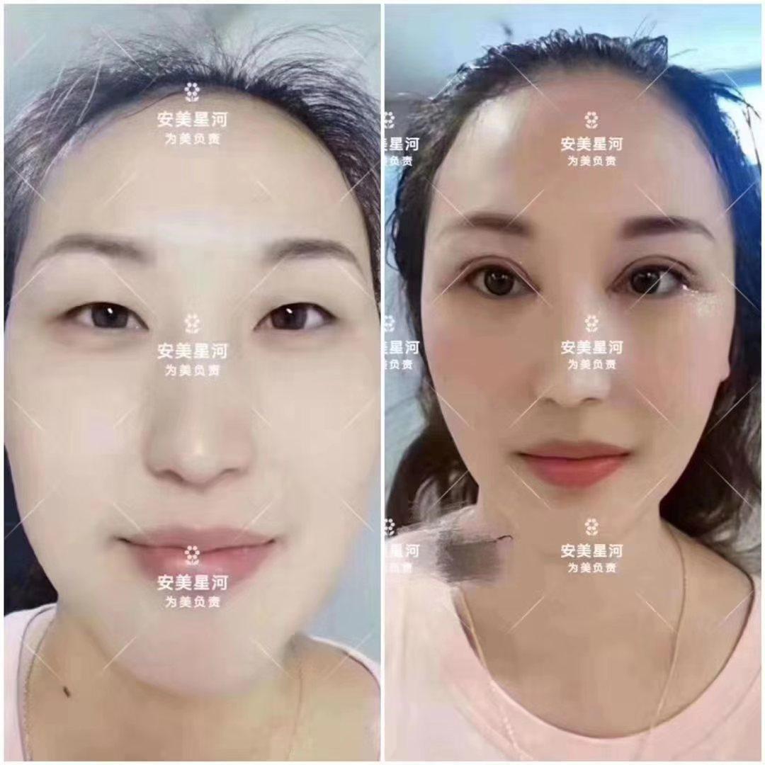双眼皮修复河南双眼皮哪里做的好?会不会有后遗症?